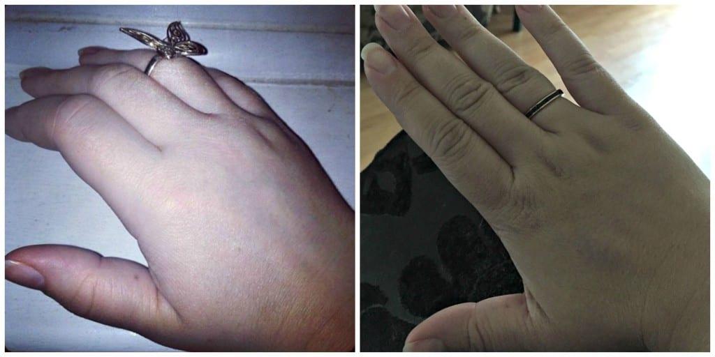 hands with arthritis comparison