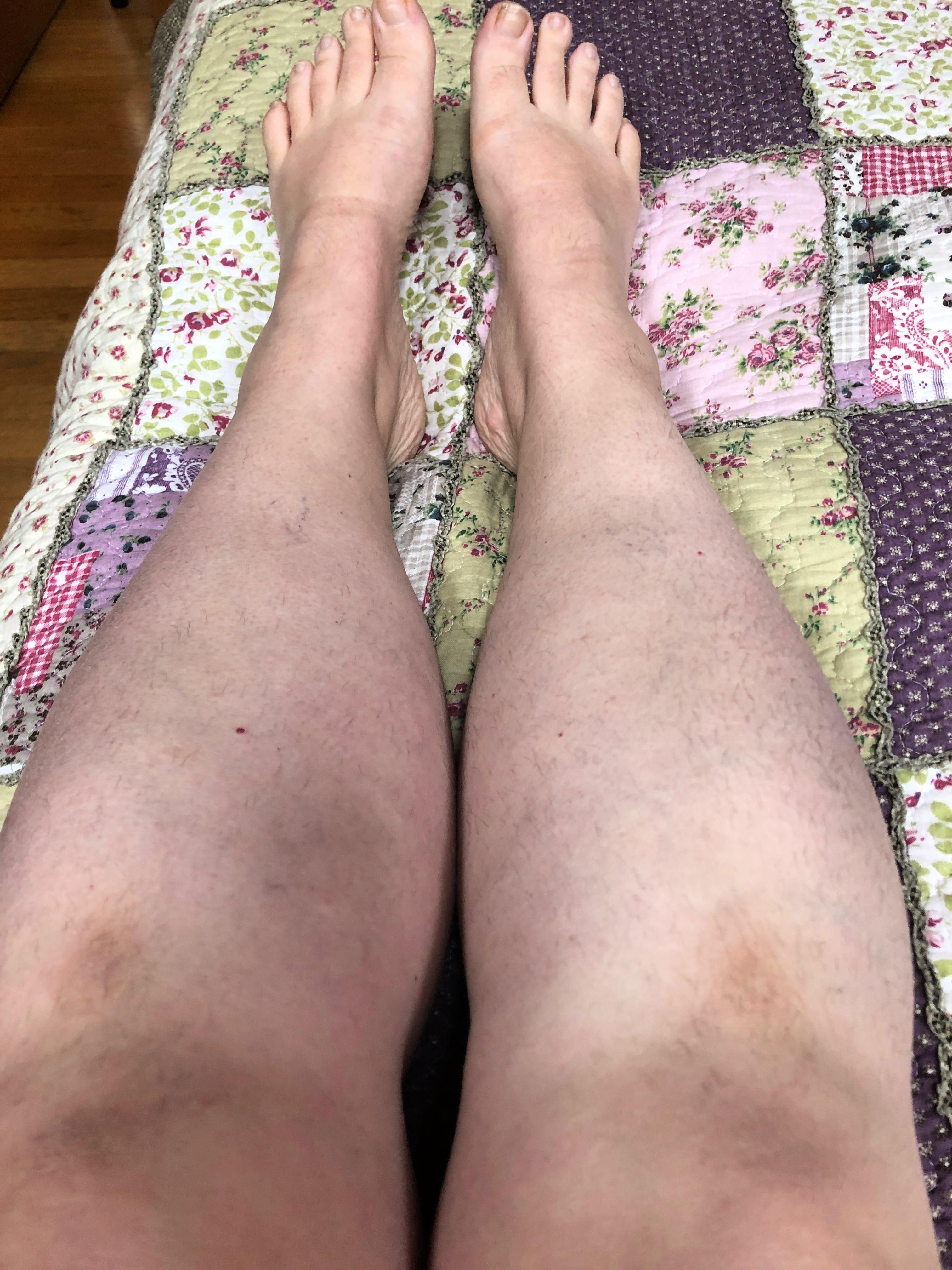 Legs 7 April 2019