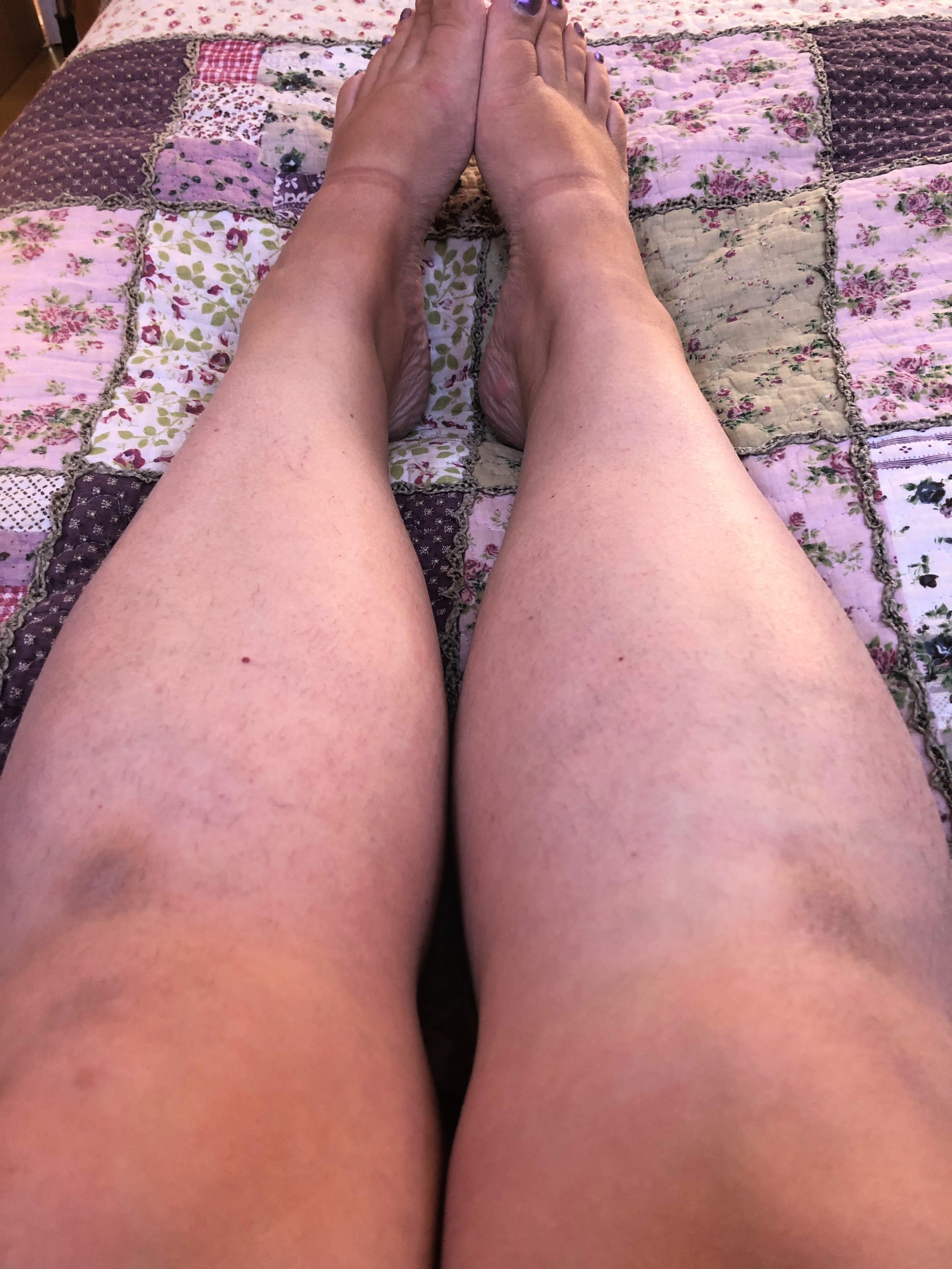 Legs August 2019