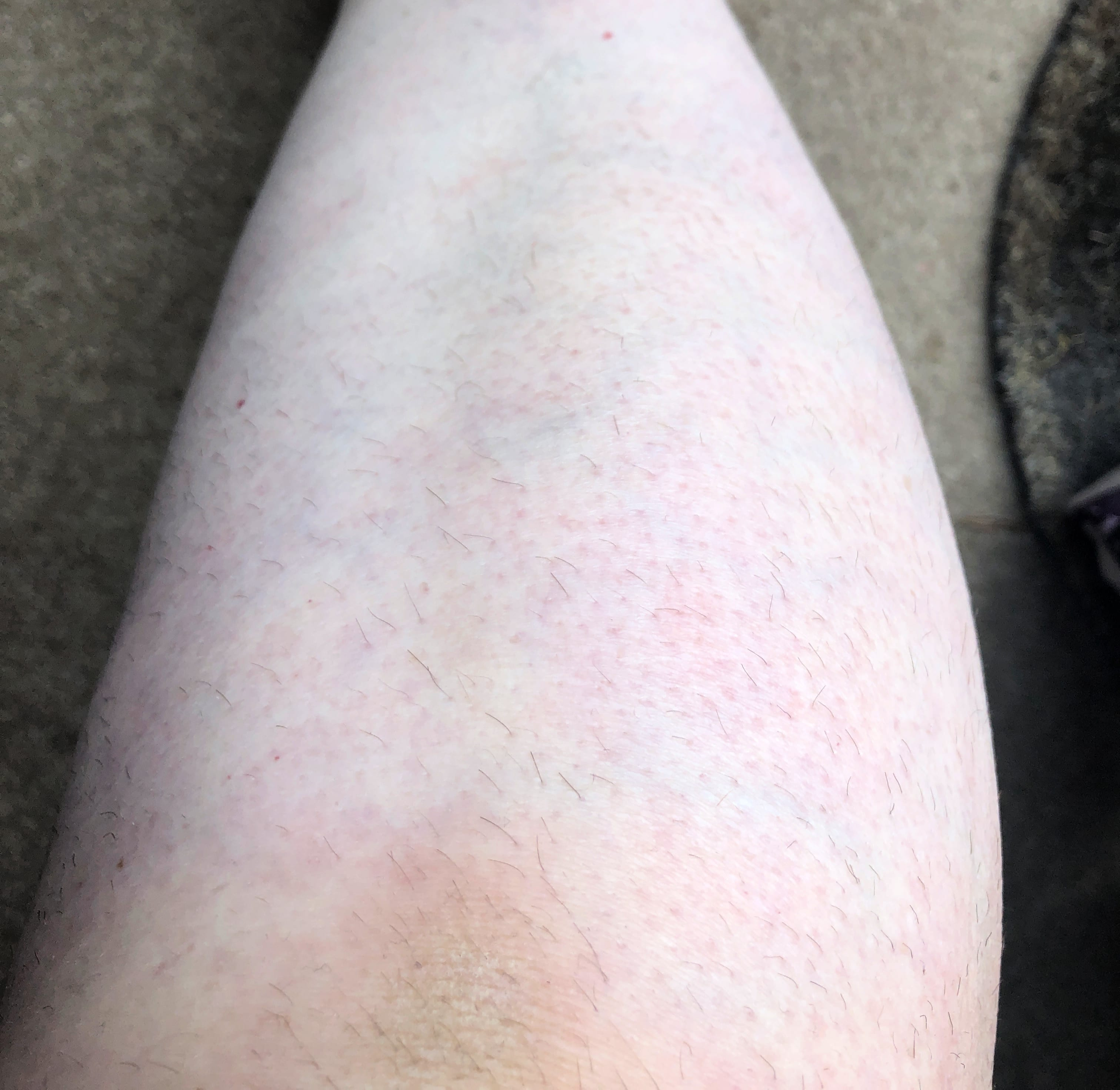 Legs Close Up August 2019