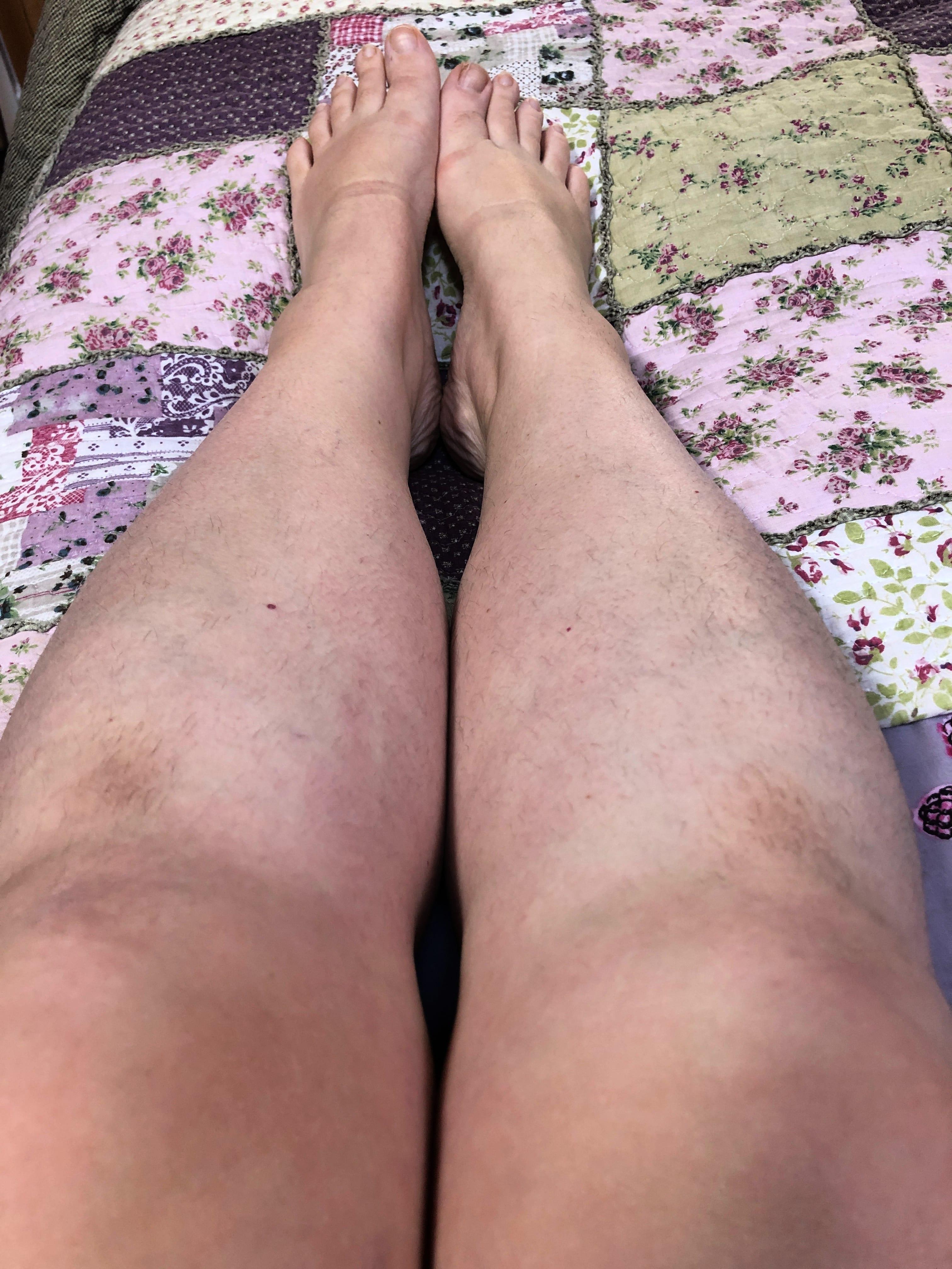 Legs March 2019